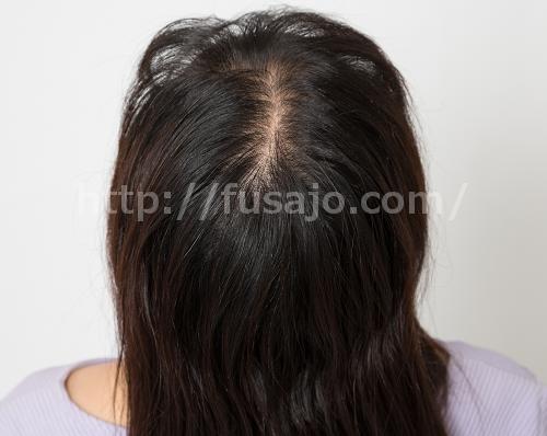 治療前の頭頂部の画像02