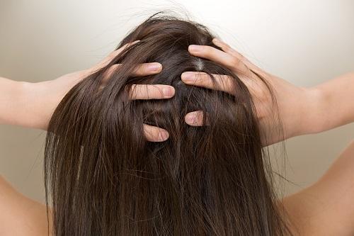 頭皮の薄毛