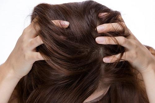 女性の頭皮