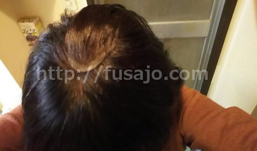 薄毛の女性の頭頂部