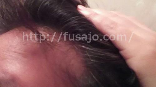 生え際の薄毛