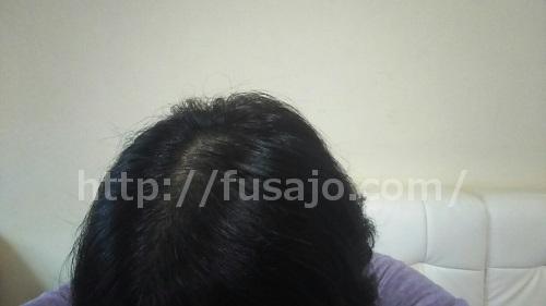 女性の薄毛治療体験談