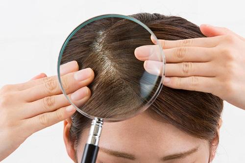 頭皮の拡大