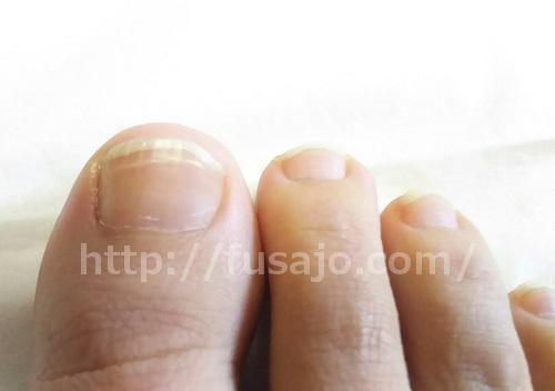 1ヶ月前の爪の状態