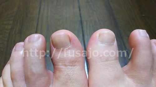 今の爪の状態