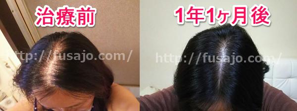 薄毛治療のビフォーアフター