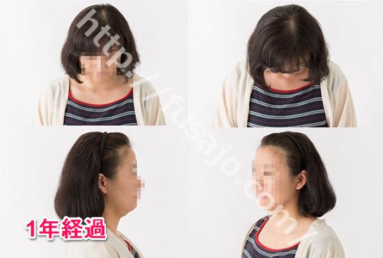 東京ビューティークリニック治療12ヶ月経過