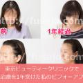 東京ビューティークリニックの薄毛治療
