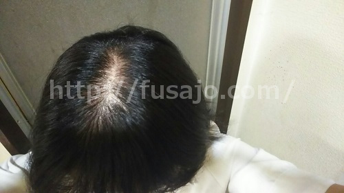 薄毛治療の半年後