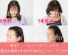 東京ビューティークリニックで薄毛治療を1年受けた効果・変化